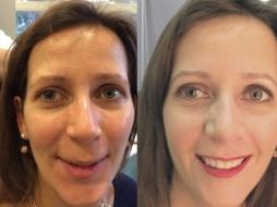 Ultraschall Kosmetik Vorher Nachher