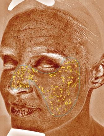 Braune Flecken sind Läsionen auf der Haut, wie Hyperpigmentierung, Sommersprossen, Altersflecken und Melasma.