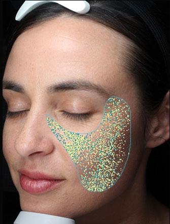 Ebenheit ist in erster Linie eine Analyse der Gleichmäßigkeit der Hautoberfläche.