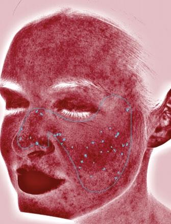 Rote Bereich können eine Vielzahl von Ursachen haben, wie z.B. Akne, Entzündungen,  Couperose und Rosacea.