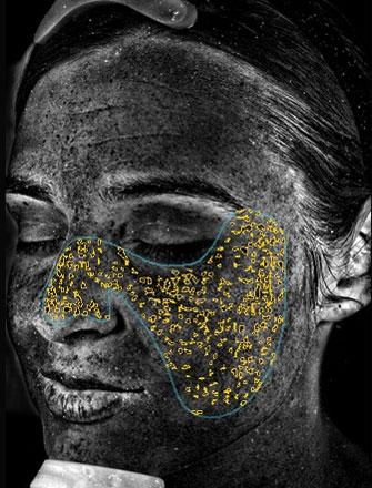 UV-Flecken treten als Folge von Sonnenschäden auf, wenn Melanin unter der Hautoberfläche koaguliert.