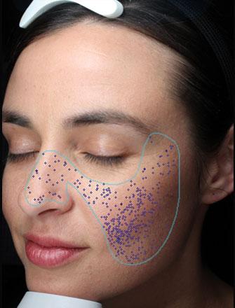 Poren sind kreisrunde Öffnungen der Schweißdrüsenkanäle an der Hautoberfläche.