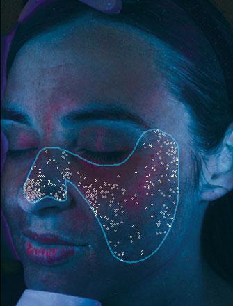 Porphyrine sind bakterielle Ausscheidungen, die sich in den Poren einlagern und zu Akne führen können.